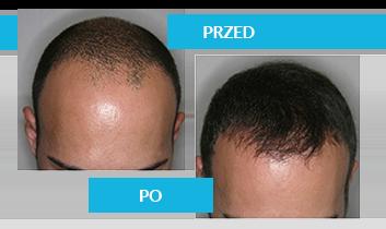skuteczny preparat na porost włosów dla mężczyzn